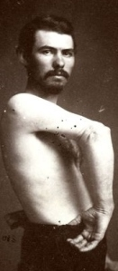 Private Jacob Hertzog, 47th Pennsylvania Volunteers - Co. K, successfully recovered from a gunshot wound to his right arm. Source: U.S. Surgeon General's Office (public domain, c. 1866).
